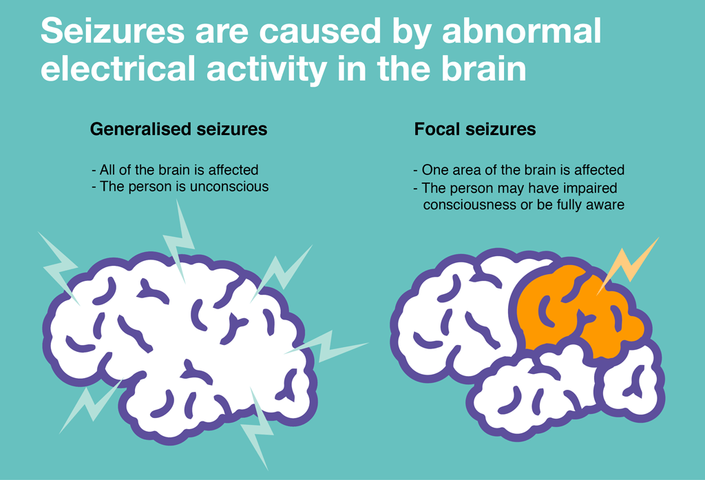 Seizures are caused by abnormal electrical activity in the brain